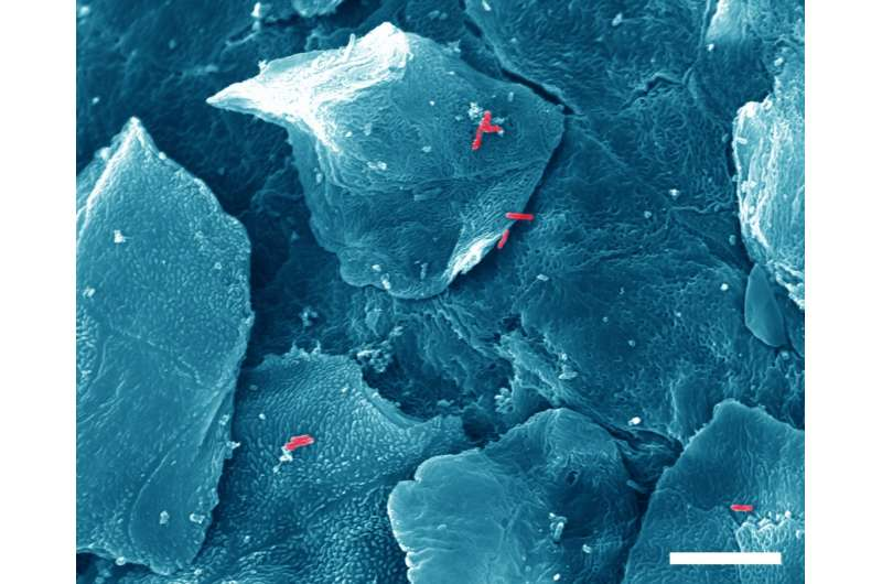 Fatal attachment: How pathogenic bacteria hang on to mucosa and avoid exfoliation