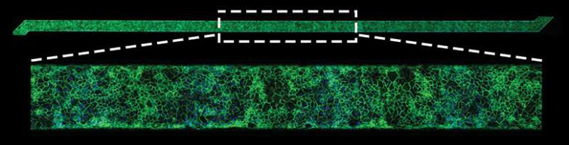'Fixing' blood vessel cells to diagnose blood clotting disorders