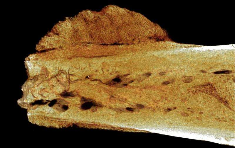 Fossil evidence reveals that cancer in humans goes back 1.7 millionyears