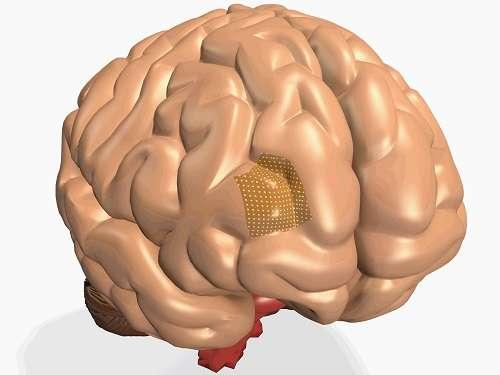 Gentle sensors for diagnosing brain disorders