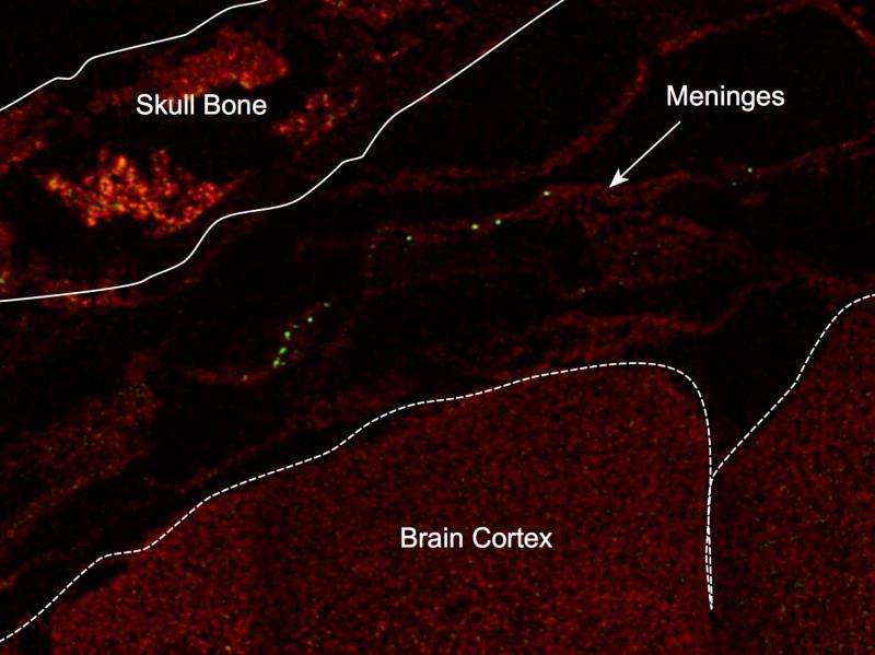 GI tract bacteria help decrease stroke