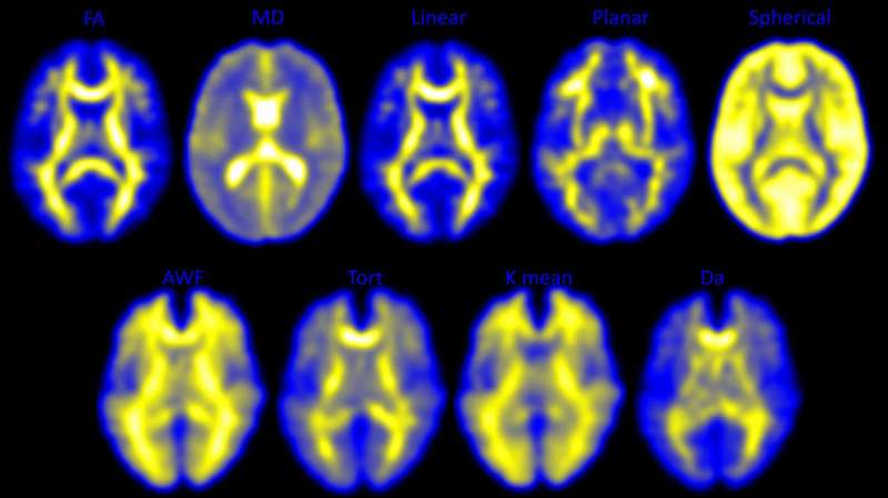 Head impacts lead to brain changes in high school football players