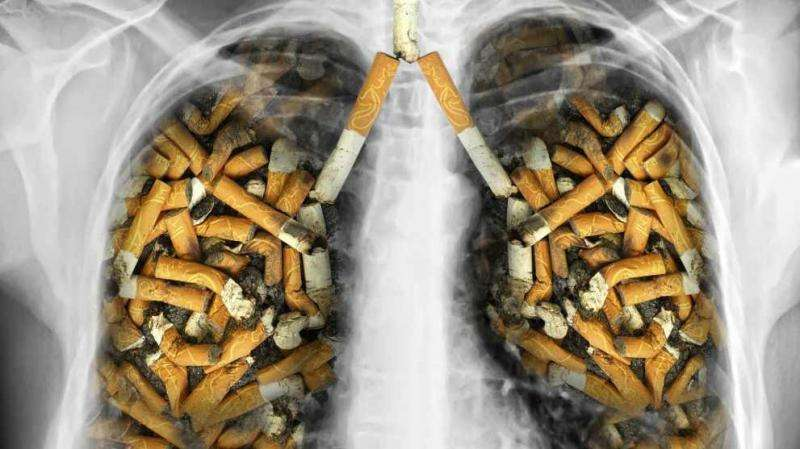 Heavy smokers who quit more than 15 years ago still at high risk for lung cancer and should be screened