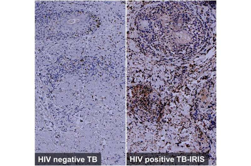 How HIV infection increases the risk of tuberculosis