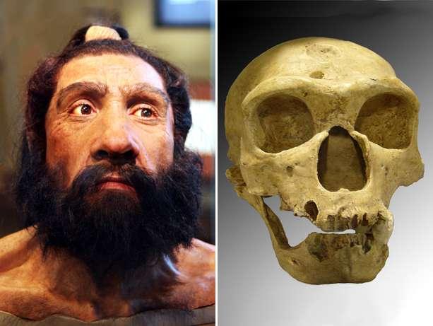 Human-Neanderthal gene variance is involved inautism