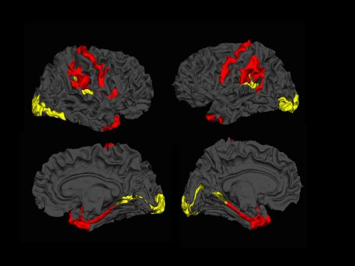 Imaging study shows promising results for patients with schizophrenia