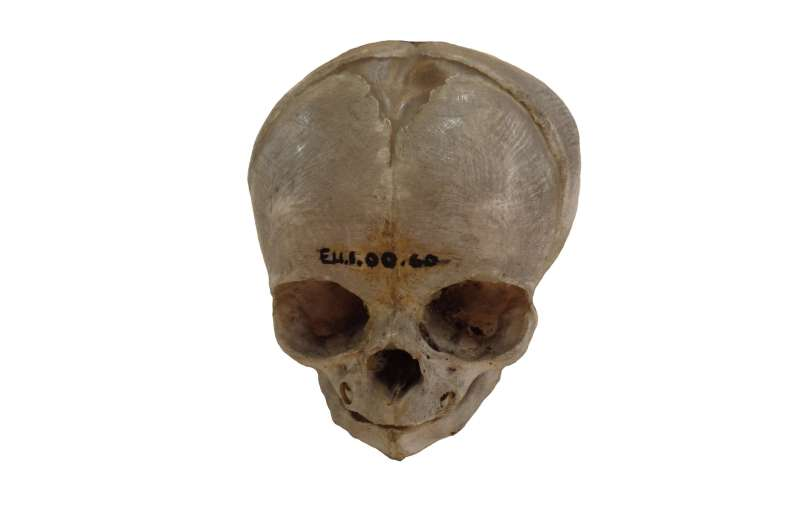Infant bodies were 'prized' by 19th century anatomists, study suggests
