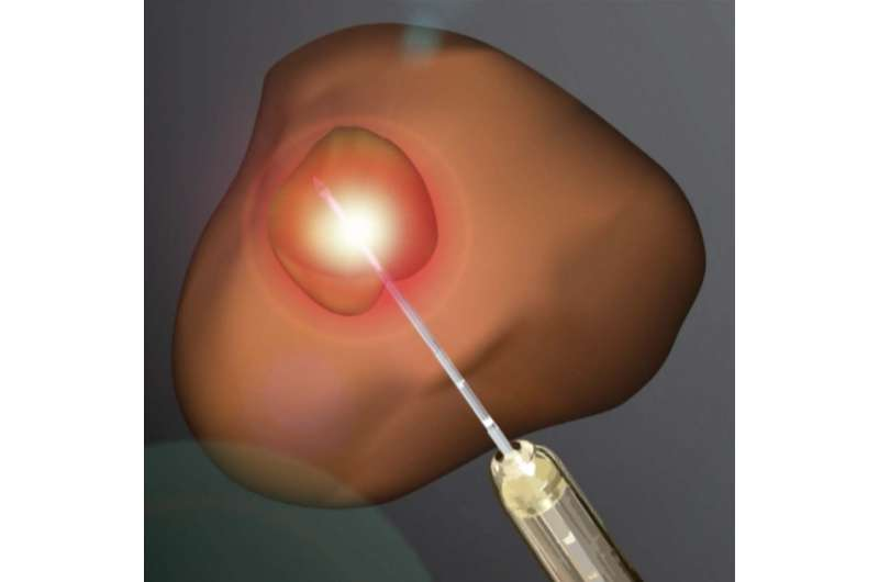 Laser ablation becomes increasingly viable treatment for prostate cancer