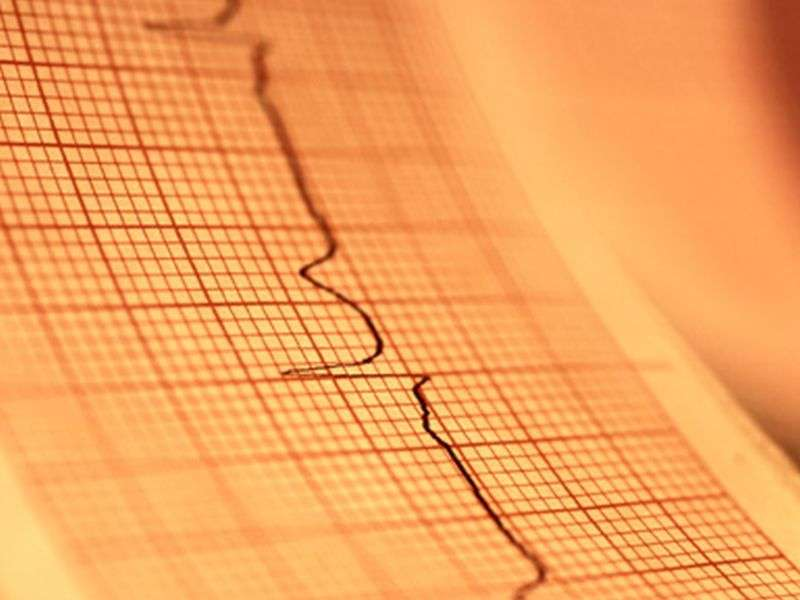 Liraglutide increases heart rate in T2DM with stable CAD