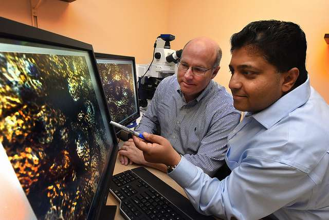 Metabolite of multiple sclerosis drug could be safe, effective therapy for Parkinson's disease