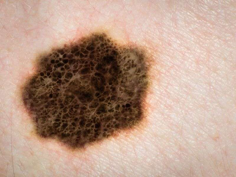 Mohs effective for melanoma in situ of trunk, extremities