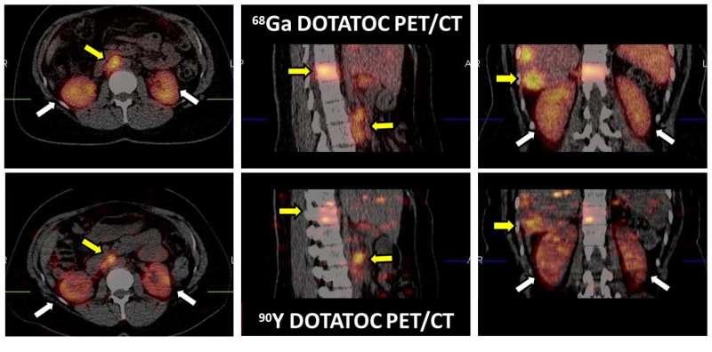 Molecular imaging of neuroendocrine tumors optimizes radiotherapy dose