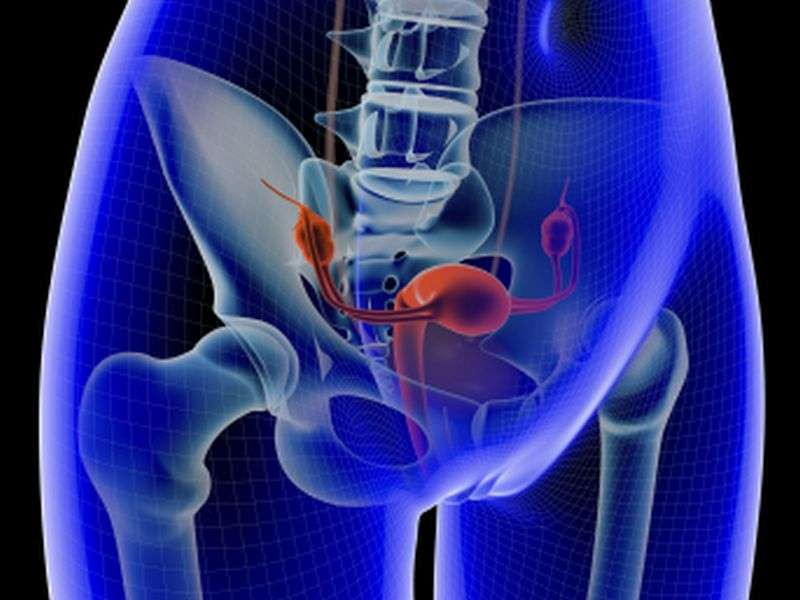Muscle training may help with mild pelvic organ prolapse