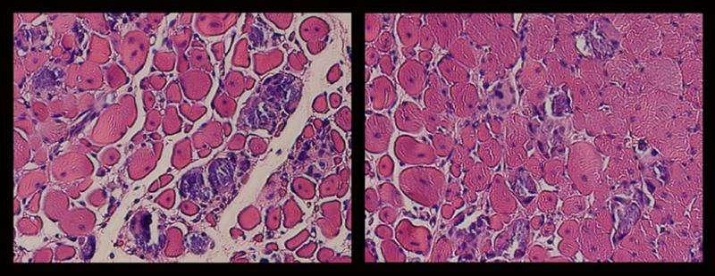 Newfound strength in regenerative medicine