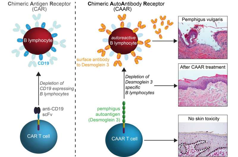 New therapy treats autoimmune disease without harming normal immunity