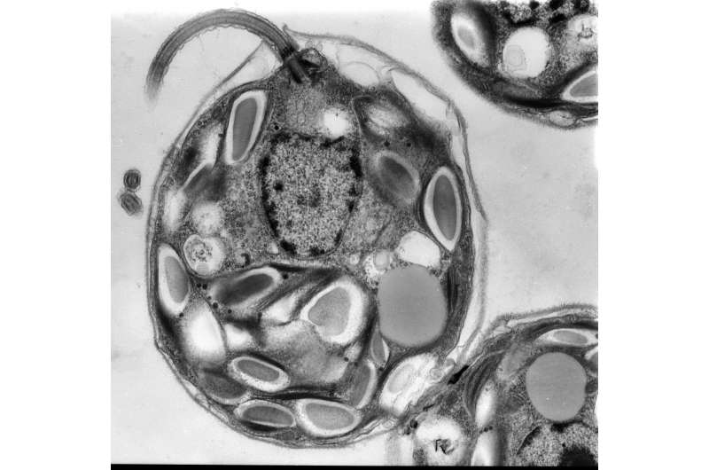 Novel 'repair system' discovered in algae may yield new tools for biotechnology