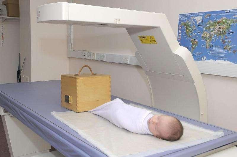 Pregnancy vitamin D supplementation may help winter baby's bones