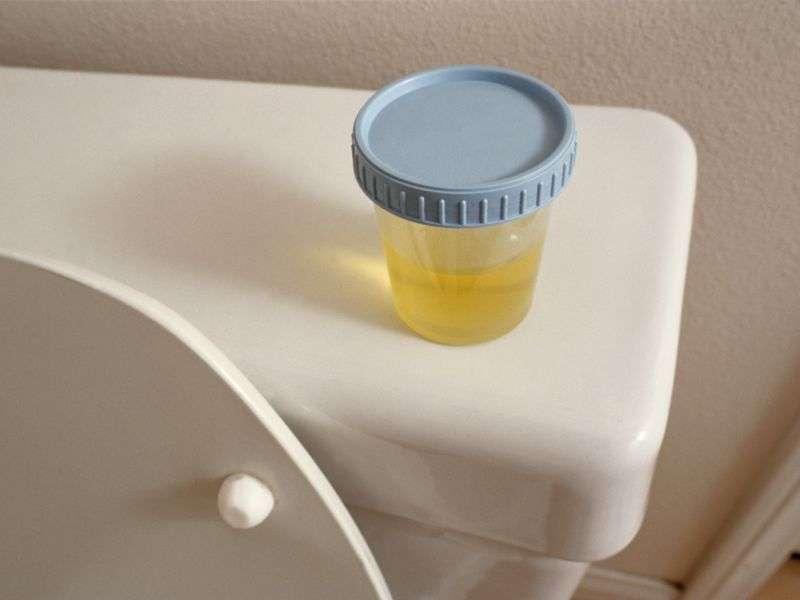 Pre-op urine culture doesn't predict stone culture
