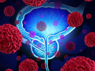 Prognostic factor indicates risk of cancer recurrence following radical prostatectomy