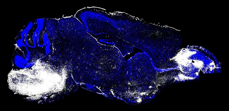 Raising the curtain on cerebral malaria's deadly agents