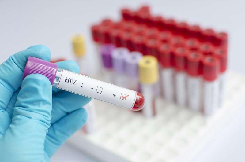 Risk-taking behaviors tied to racial disparities in HIV in gay communities