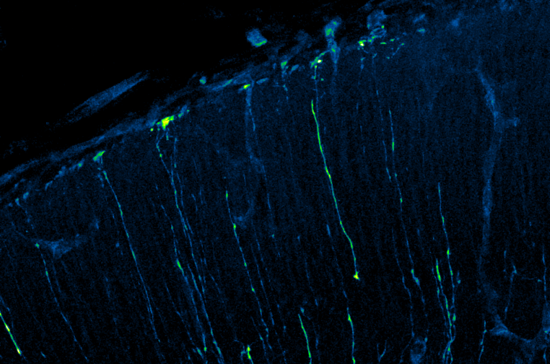 Slow stem cell division may cause small brains