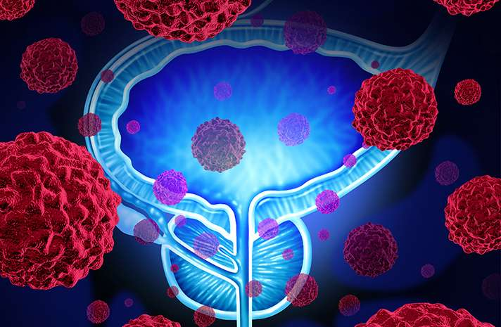 Study finds differences in care for patients with low-risk prostate cancer based on institution and region
