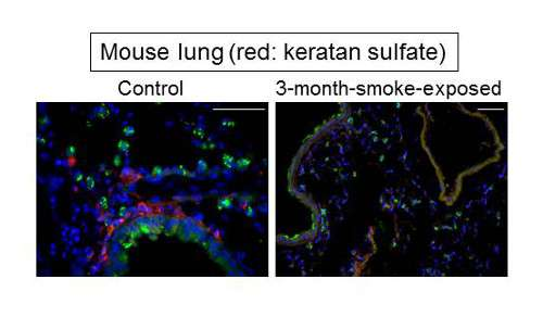 Sugar element of keratan sulfate halts the progress of emphysema