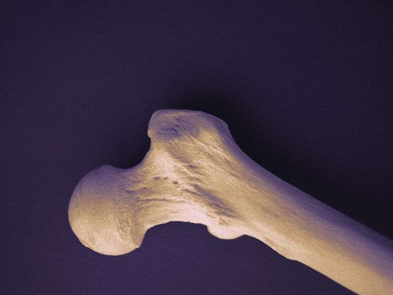 Summer concentrations of 25OHD predict bone mineral density