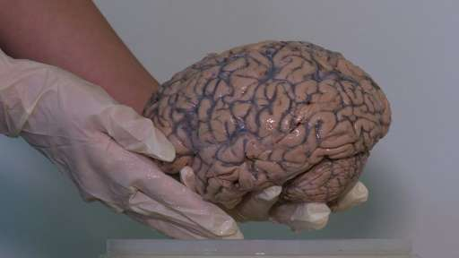 The collection of brains was started in 1951 by a British doctor, and was almost lost because of lack of storage in London