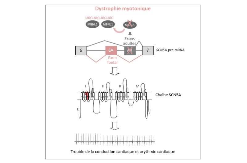 The origin of heart dysfunctions in myotonic dystrophy identified