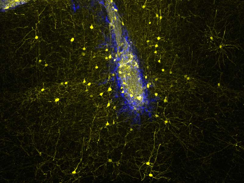 Transplanted embryonic nerve cells can functionally integrate into damaged neural networks