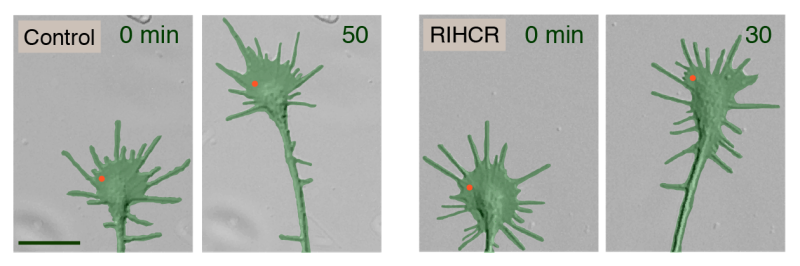 Turn left! How myosin-Va helps direct neuron growth