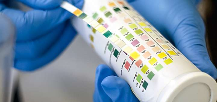 Urine tests not reliable for dehydration in older adults