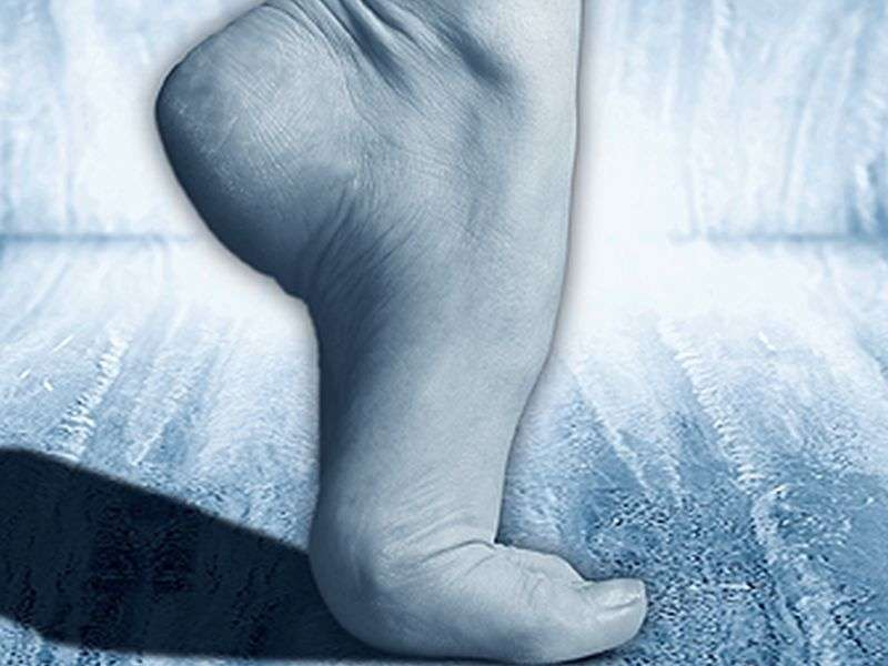 U/S can diagnose compression of deep peroneal nerve