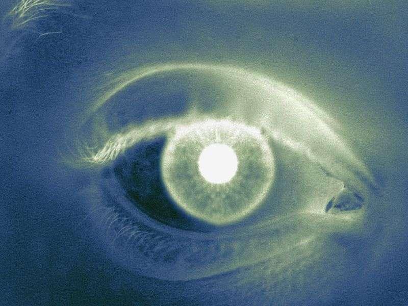 Venlafaxine-induced rise in intraocular pressure described