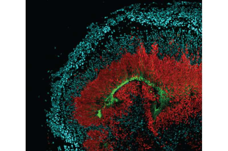 Why neural stem cells may be vulnerable to Zika infection