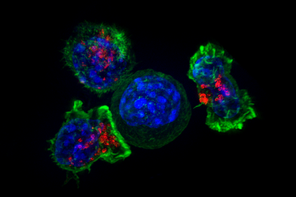 Why tumors evade immunotherapy