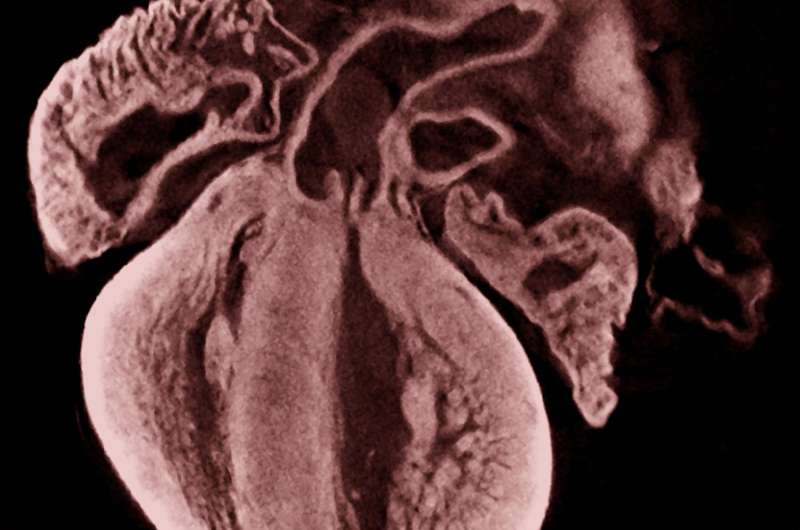 World first discovery gets to the heart of birth defects