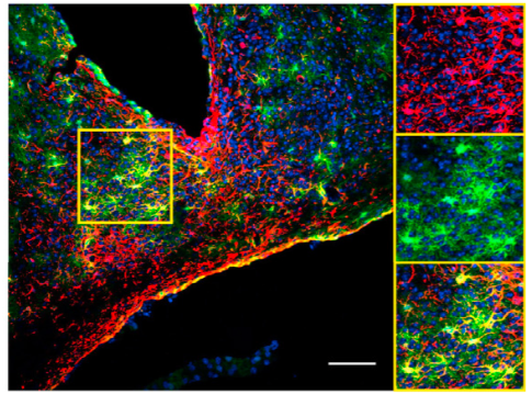 Astrocytes found to keep time for brain, behavior