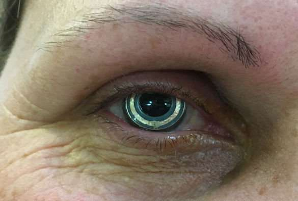 Clinical study success for novel contact lens device aimed to improve glaucoma treatment