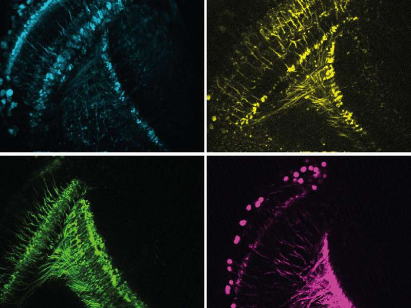 Neurobiologists discover important characteristics of the motion detector in the fly brain