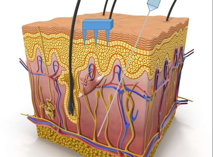 Painless microneedles extract fluid for wearable sensors for soldiers, athletes