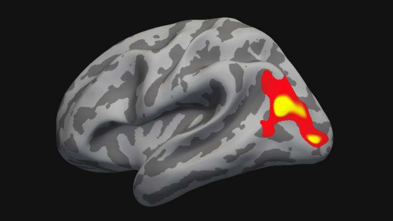Psychotherapy normalizes the brain in social phobia
