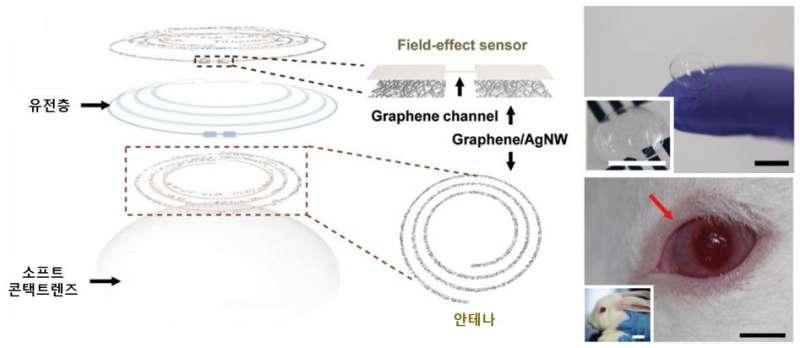 'Smart contact lens sensor' for diabetic and glaucoma diagnosis