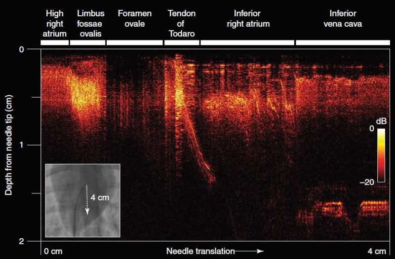 Ultrasound imaging needle to transform heart surgery