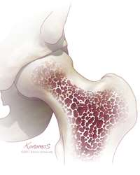 Using your own stem cells to help your body heal osteoarthritis