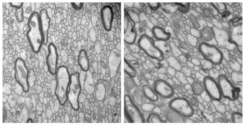 Researchers identify new cause of brain defects in tuberous sclerosis patients