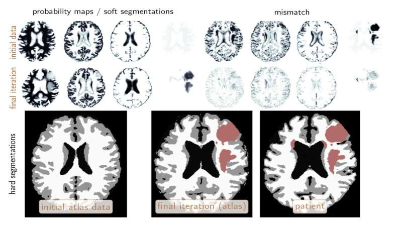 Scientists enlist supercomputers, machine learning to automatically identify brain tumors