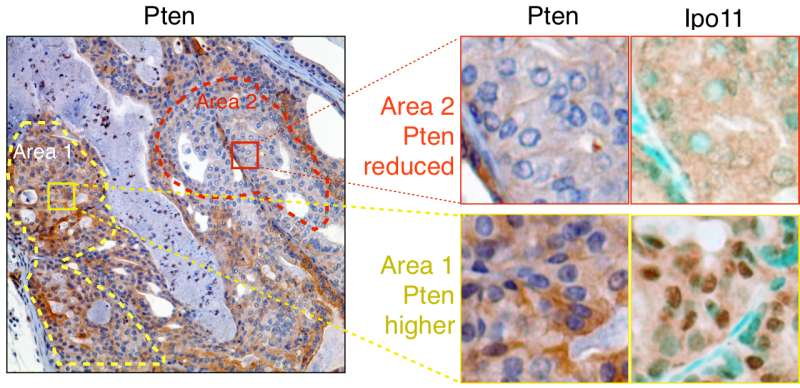 Researchers identify 'Achilles' heel' of PTEN that helps drive prostate cancer progression